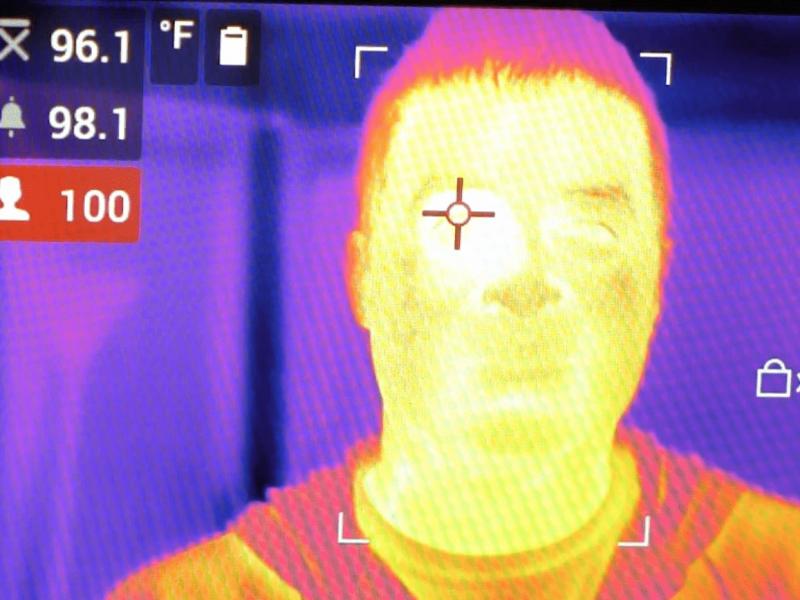Imagen_temperatura_fiebre1